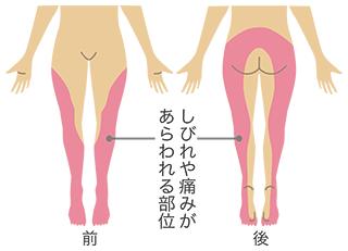 坐骨神経.png
