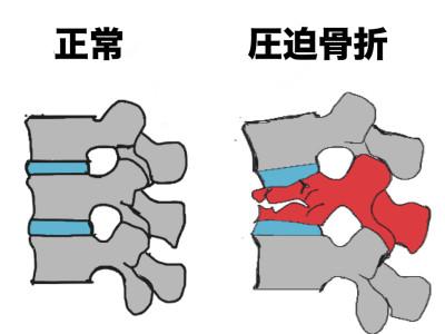 腰椎圧迫骨折_002-400x300.jpg