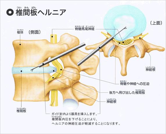 腰椎椎間板ヘルニア.jpg